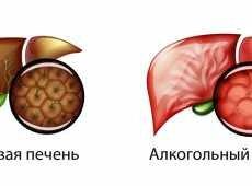 Что такое алкогольный гепатит и как его лечить